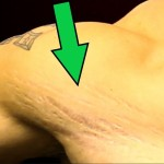 scratch marks (scars) on skin, shoulders, legs, stomach  [how to prevent]